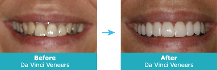 daVinci Veneers Before and After